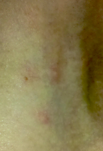My First Bed Bug Bites